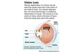 Diseases Of The Eye That Cause Blindness Macular Degeneration Symptoms Diagnosis And Treatments