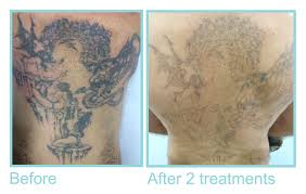 before and after hair u0026 tattoo removal pics laser clinic