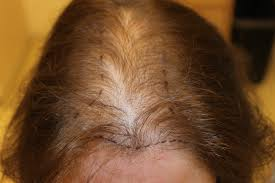 female balding at temples hairstyles hair loss in women syracuse ny syracuse female hair loss