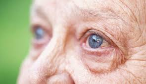 Diseases Of The Eye That Cause Blindness 4 Common Eye Diseases That Cause Blindness In Aging Eyes Dailycaring