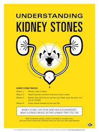 Kidney Stones Meme - symptoms uric acid kidney stones best treatment for elbow gout