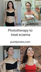 light therapy for eczema phototherapy to treat eczema before and after pictures light