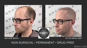 pics of scalp micropigmentation on people with long hair what does scalp micro pigmentation smp cost bravi scalp micro