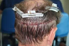 prescreened hair transplant physicians fue hair transplant surgery dr rajat gupta is best hair