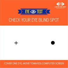 Blind Spot In Left Eye Roll Your Eyes Up U0026 Down Left To Right And Then Diagonally Each