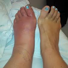 how do i if my is infected sutherland podiatry