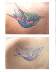 tattoo removal patience is key contour dermatology
