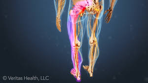 leg pain and numbness what might these symptoms mean