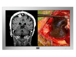 42 inch high definition lcd display for the operating room md