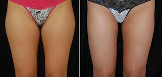 pubic hair on thigh liposuction boston smartlipo boston plastic surgery specialists
