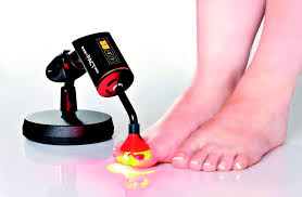 yellow nails toe nail fungus treatment light treatment for fungal nail infection ealing west londonsport