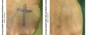 tattoo removal yuva medical spa