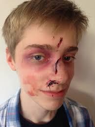 black eye make up for halloween using a kryolan bruise wheel