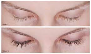 latisse eyelash growth in virginia beach va virginia surgical arts