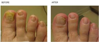 nail fungus treatment with laser total body care