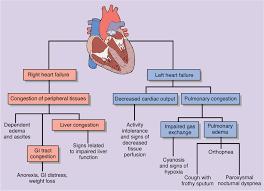 right versus left sided heart failure nursing tidbits
