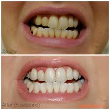 review of smile brilliant custom trays teeth whitening before