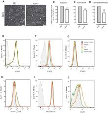 Acute Exposure To Apolipoprotein A1 Inhibits Macrophage Chemotaxis