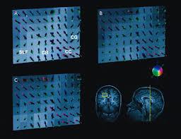 diffusion mri of complex neural architecture neuron