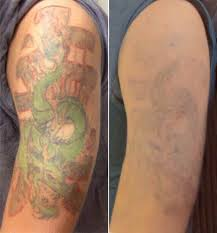 laser tattoo removal contour dermatology