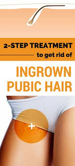 constant ingrown hairs on pubis get rid of ingrown pubic hair ingrown hair remedy ingrown hair