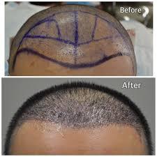 hair transplant in the philppines cost dr matt tahsini fue hair transplant hairsite com
