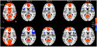 frontiers effect of continuous touch on brain functional