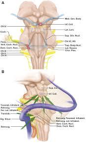 Brain Stem Anatomy Surgeons Publish Study On Auditory Brainstem Implant Procedure