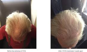new hair growth discoveries krox20 the end of hair loss and balding by 2020