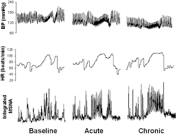 square root of 289 persistent sympathetic activation during chronic antihypertensive