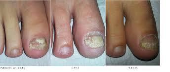 nail fungus treatment nail infection treatment nail