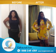 long term wls vsg wls before and after pictures long term
