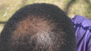 Hair Growth Products At Walmart Nofap Hair Loss Repair Using Natural Products Saw Palmetto 2nd