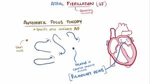 atrial fibrillation cardiovascular disorders merck manuals