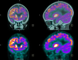 pet scans uses risks and procedure