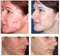 what is light therapy laser care cosmetic centers services laser treatments acne