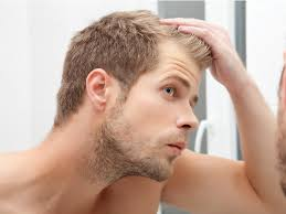 7 most common causes of men u0027s hair loss business insider