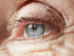 Cataract Leads To Blindness Due To Lazy Eye Amblyopia Symptoms Causes Treatments