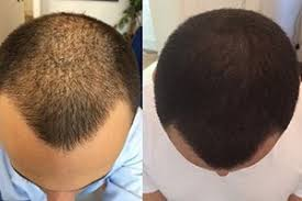prescreened hair transplant physicians is it must to go bald for hair transplant quora