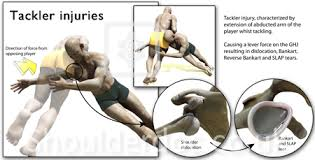 Rotator Cuff Injury From Bench Press The Rugby Shoulder Shoulderdoc