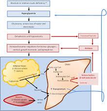pilonidal cyst diagram ketoacidosis u2013 craftbrewswag info