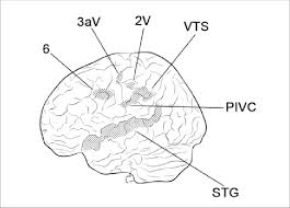 schematic drawing of a monkey brain with the neurophysiologically