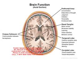Axial Mri Brain Anatomy Medical Exhibits Demonstrative Aids Illustrations And Models