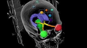 ge healthcare introduces revolution ct with whisper drive