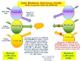 Gene Therapy For Blindness Color Blindness Red Green Partial Hereditary Ocular Diseases