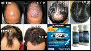obat rambut penumbuh rambut botak mengatasi rambut rontok tips alami mengatasi kebotakan dan rambut rontok pada pria