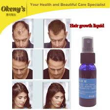 stop womens chin hair growth 1 bottle fast hair growth stop hair loss product dense hair