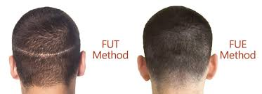 fut hong kong hair transplant comparison of fut and fue hair transplant in dubai hair