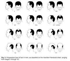 men growing hair out stages reversing age related hair loss and restoring healthy hair growth
