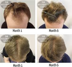 male hair extensions before and after celtic fc players anthony stokes and leigh griffiths undergo hair